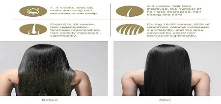 Rapid Hair Recovery
